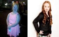Девушка с синдромом Дауна похудела на 18 килограммов ради карьеры модели
