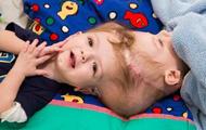 В США успешно разделили сиамских близнецов