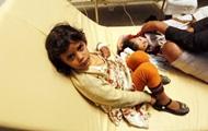 Йемену грозит эпидемия холеры: уже 250 жертв